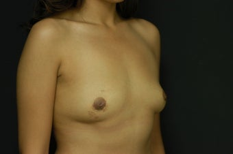 25-year old female, Saline Breast Implant Removal.  Local anesthetic. after 1045931