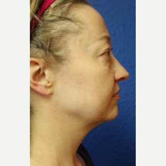 35-44 year old woman treated with Facelift before 3277322