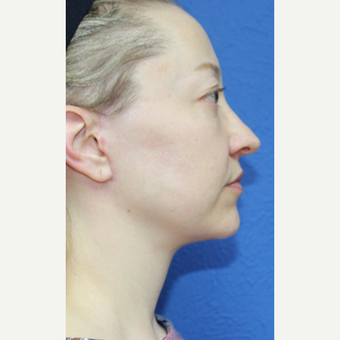 35-44 year old woman treated with Facelift after 3277322