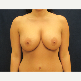 35-44 year old woman treated with Breast Implants after 3301181