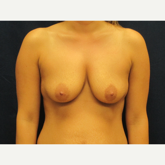 35-44 year old woman treated with Breast Implants before 3301181