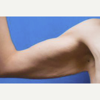 25-34 year old woman treated with Arm Lift before 3549195