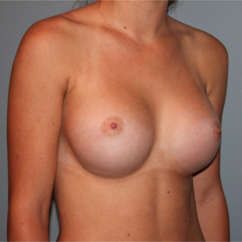 21 year old woman had Breast Augmentation with an armpit incision and silicone implants after 3465150
