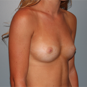 21 year old woman had Breast Augmentation with an armpit incision and silicone implants before 3465150