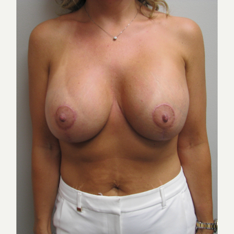 25-34 year old woman treated with Breast Lift with Implants after 3399603