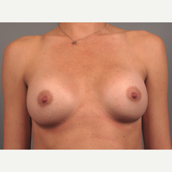 25-34 year old woman treated with Breast Implants after 3258362
