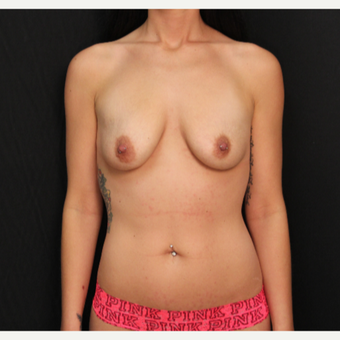 27 year old female with bilateral submuscular silicone implants placed through the underarm before 3522699