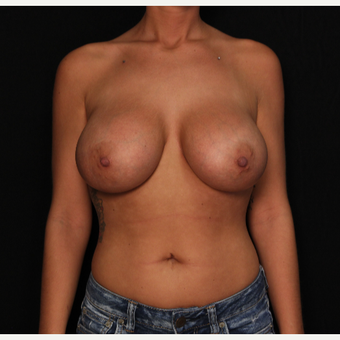 27 year old female with bilateral submuscular silicone implants placed through the underarm after 3522699