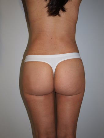 35-44 year old woman treated with Brazilian Butt Lift after 3082327
