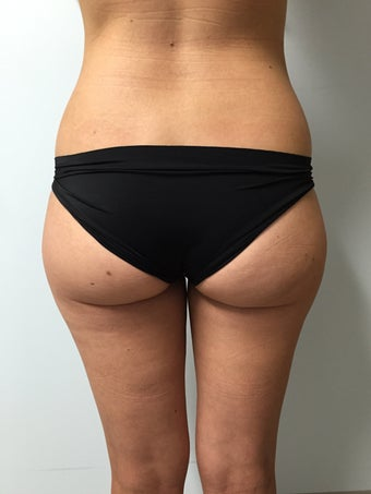 35-44 year old woman treated with Brazilian Butt Lift before 3082327