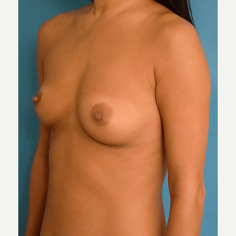 35-44 year old woman treated with Breast Augmentation before 3423654