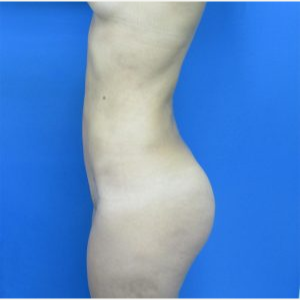 18-24 year old woman treated with Brazilian Butt Lift after 3749159