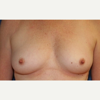 52 year old woman treated with a bilateral breast reconstruction with silicone gel implants before 3055645