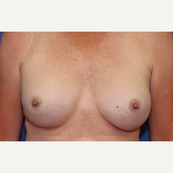 52 year old woman treated with a bilateral breast reconstruction with silicone gel implants after 3055645