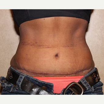 Tummy tuck with Liposuction after 3454559