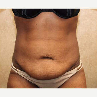 Tummy tuck with Liposuction before 3454559
