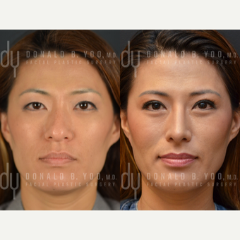 25-34 year old woman treated with Asian Rhinoplasty before 2990835