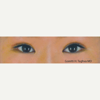 18-24 year old woman treated with Asian Eyelid Surgery after 3347004