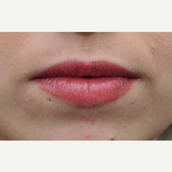 18-24 year old woman treated with Lip Augmentation before 3135351