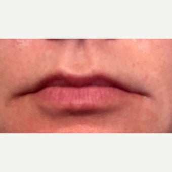 Female lip enhancement with Juvederm Ultra XC before 2300020