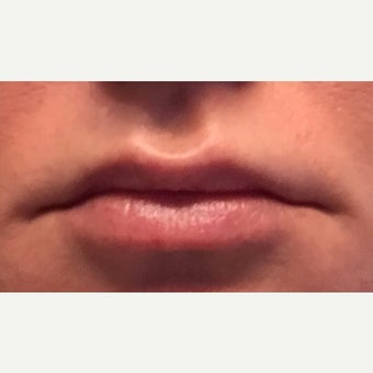 Female lip enhancement with Juvederm Ultra XC after 2300020