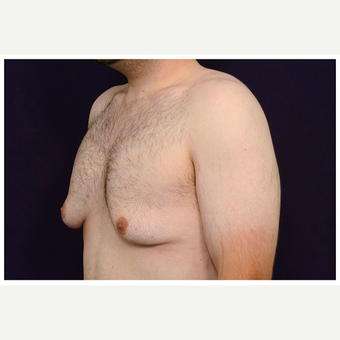 18-24 year old man treated with Male Breast Reduction before 3536527