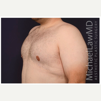18-24 year old man treated with Male Breast Reduction after 3536527