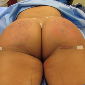 35-44 year old woman treated with Brazilian Butt Lift after 1801065