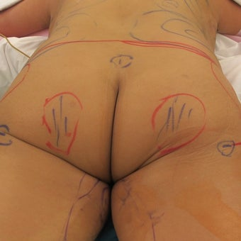 35-44 year old woman treated with Brazilian Butt Lift before 1801065