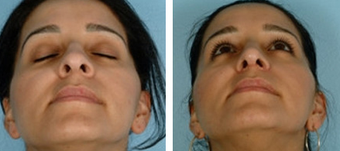 Functional Rhinoplasty before 1208315