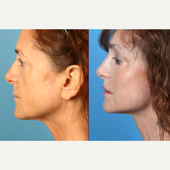 45-54 year old woman with cheek implants/augmentation after 3571089