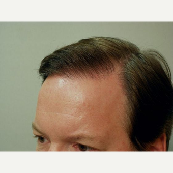 Hair Transplant after 3241381