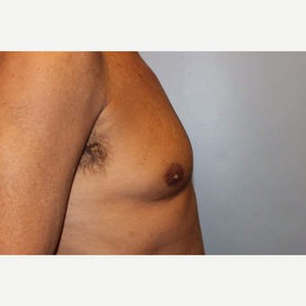 55-64 year old man treated with Male Breast Reduction before 3569499