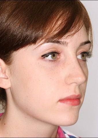 Rhinoplasty for a prominent hump after 1023198