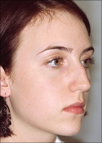 Rhinoplasty for a prominent hump before 1023198