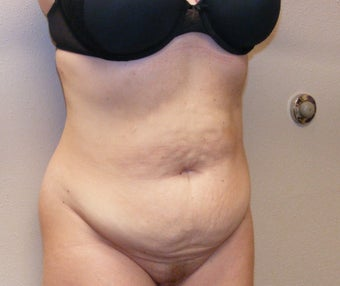 Tummy tuck before 283608