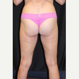 64 year old woman treated with SculpSure after 3695111