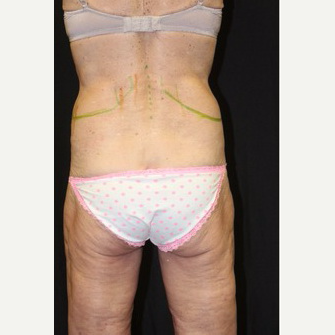 64 year old woman treated with SculpSure before 3695111