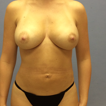 25-34 year old woman treated with Breast Augmentation after 3663896