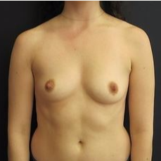 18-24 year old woman treated with Breast Augmentation before 3036686