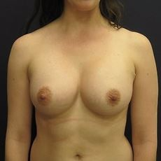 18-24 year old woman treated with Breast Augmentation after 3036686