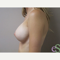 Breast Implants after 3373638