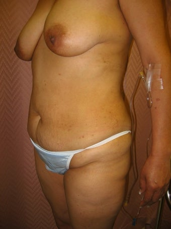 35-44 year old woman treated with Mommy Makeover before 1574712