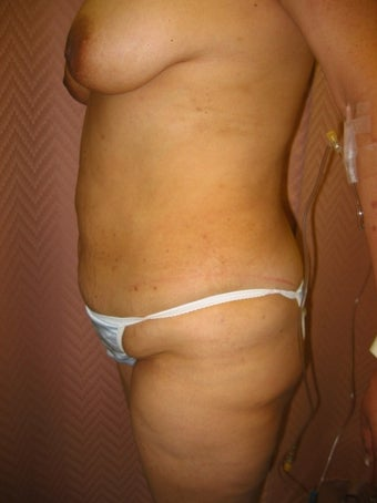 35-44 year old woman treated with Mommy Makeover 1574712