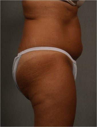 51 year old female with non surgical fat reduction via CoolSculpting of her abdomen  before 1482615