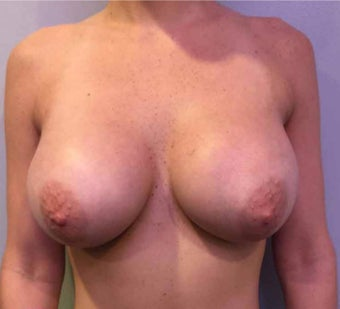 25-34 year old woman treated with Breast Augmentation after 3036484