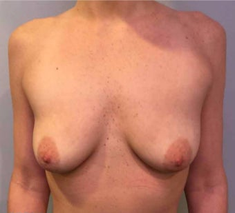 25-34 year old woman treated with Breast Augmentation before 3036484