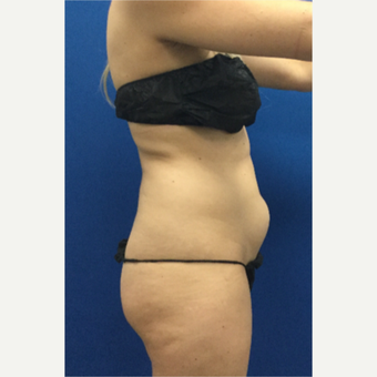 DUPL 25-34 year old woman treated with Slim Lipo before 3697152