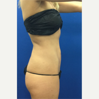 DUPL 25-34 year old woman treated with Slim Lipo after 3697152