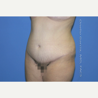 35-44 year old woman treated with Tummy Tuck after 2999113